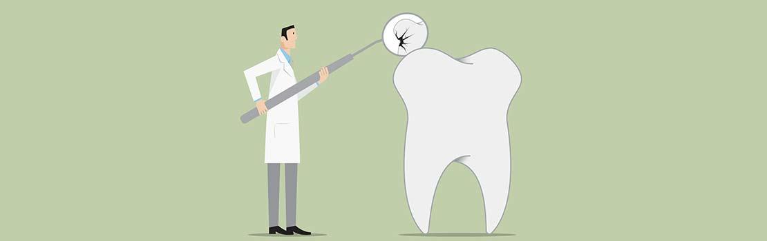 歯医者と歯
